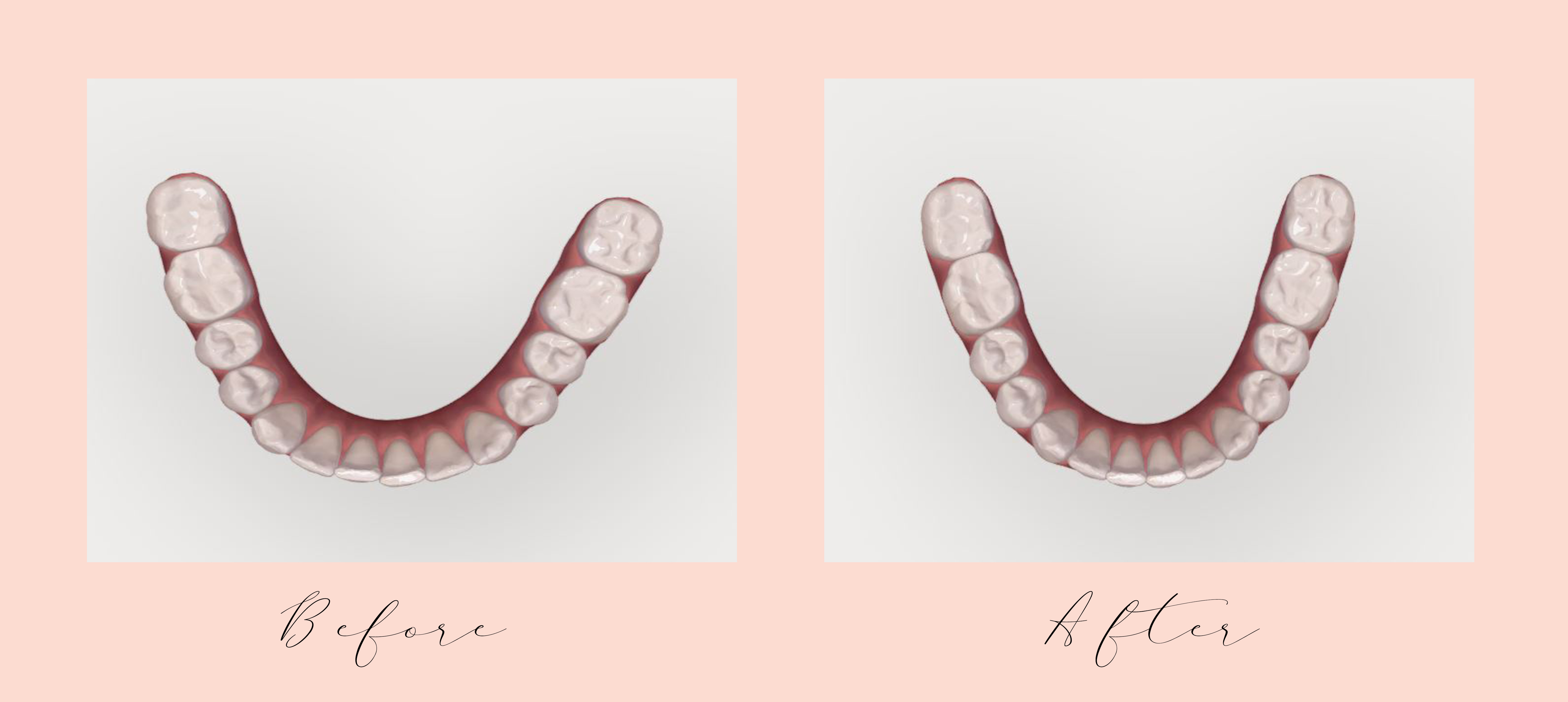 Invisalign with Dr  Valeriano of Charlotte | Style Souffle